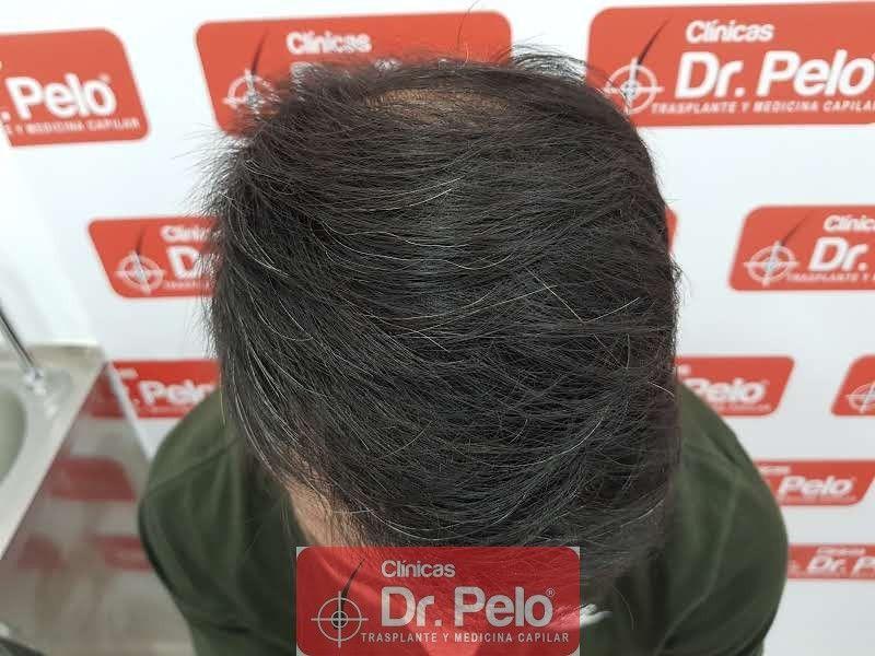 [Imagen: trasplante-capilar-dr-pelo_2.jpg]
