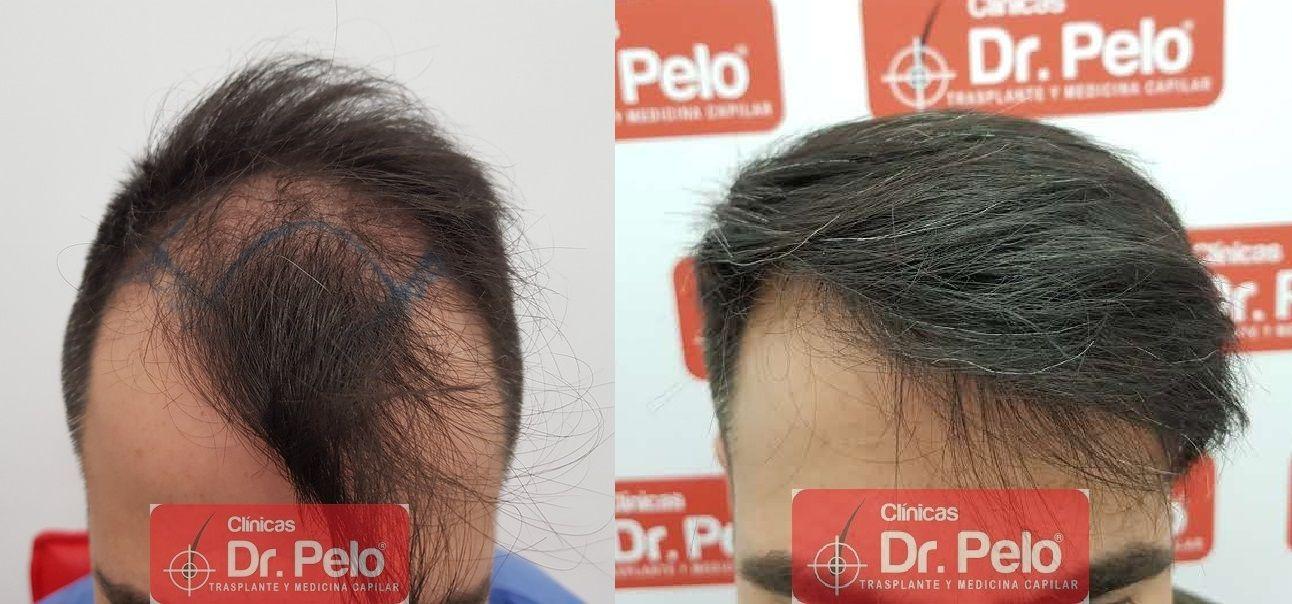 [Imagen: trasplante-capilar-dr-pelo_80.jpg]