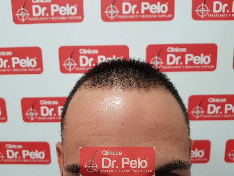 [Imagen: tratamiento-capilar-dr-pelo.jpg]