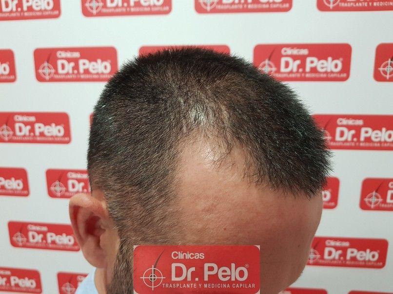 [Imagen: tratamiento-capilar-dr-pelo_5.jpg]