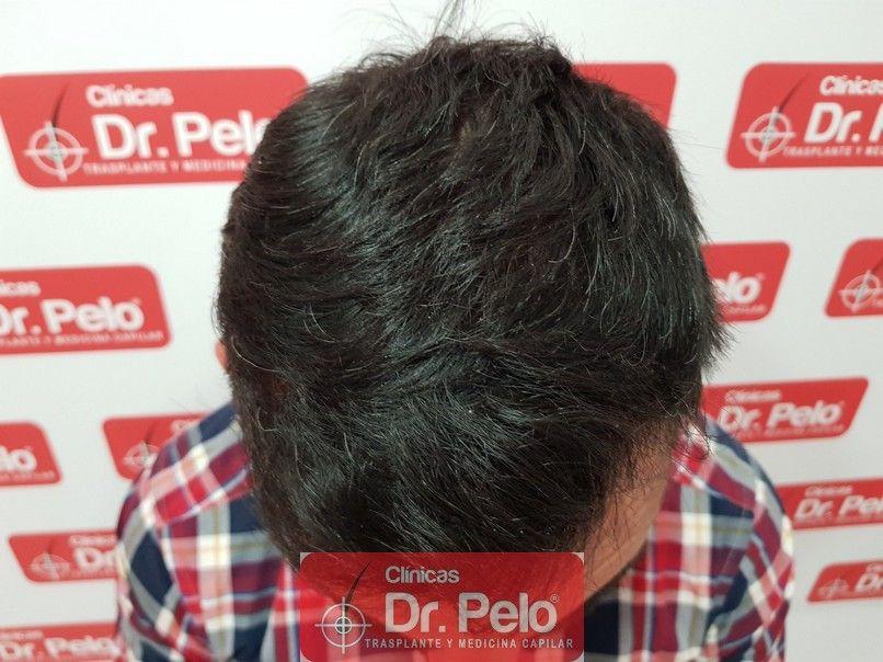 [Imagen: tratamiento-capilar-dr-pelo_7.jpg]