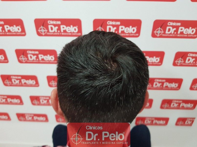 [Imagen: tratamiento-capilar-dr-pelo_9.jpg]