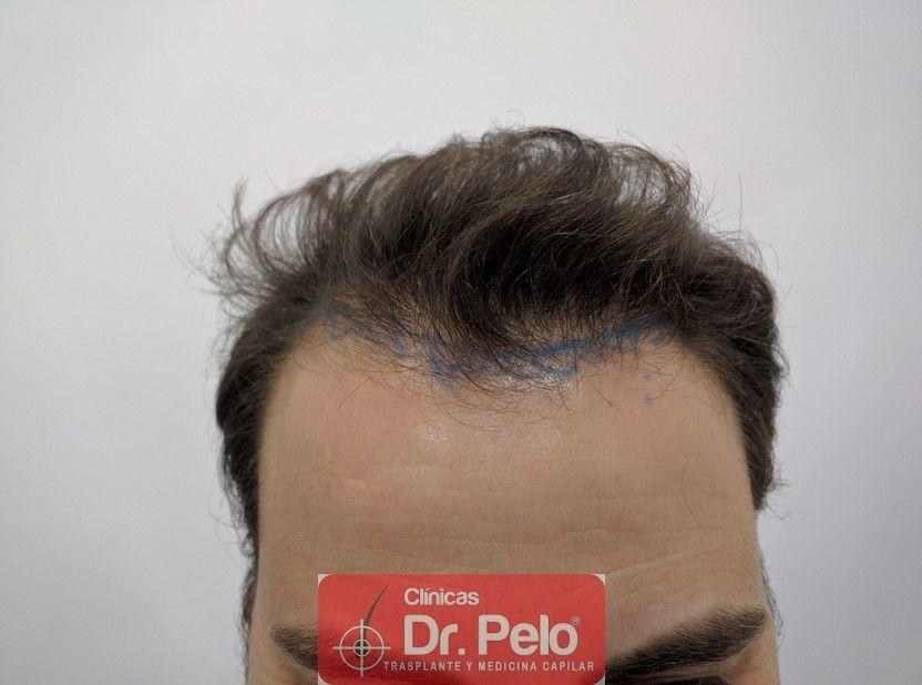 [Imagen: injerto-capilar-dr-pelo.jpg]