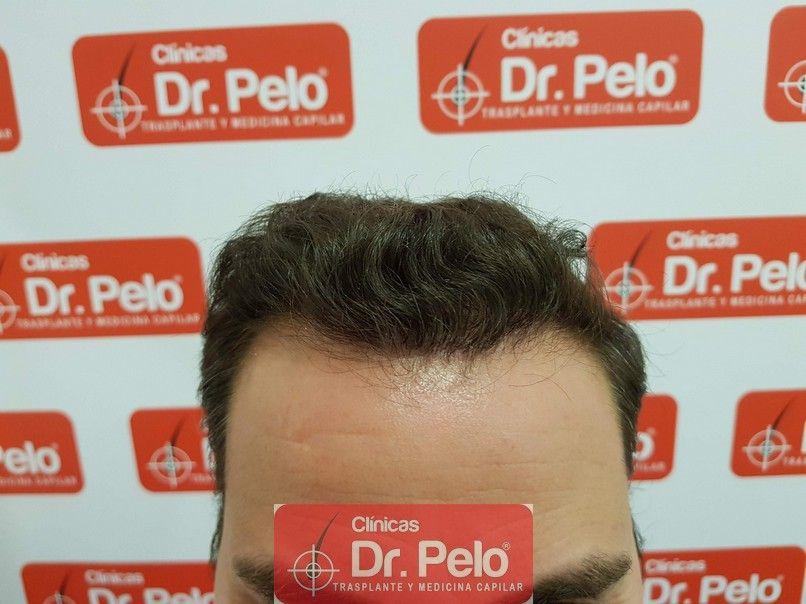 [Imagen: injerto-capilar-dr-pelo_10.jpg]