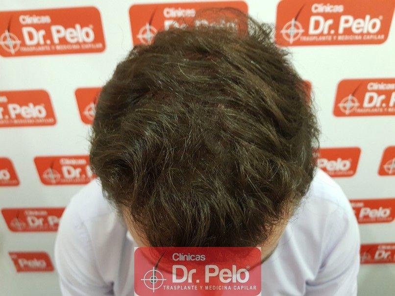 [Imagen: injerto-capilar-dr-pelo_12.jpg]
