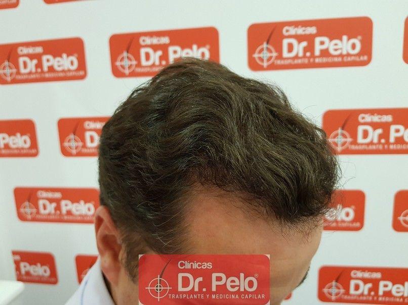 [Imagen: injerto-capilar-dr-pelo_15.jpg]