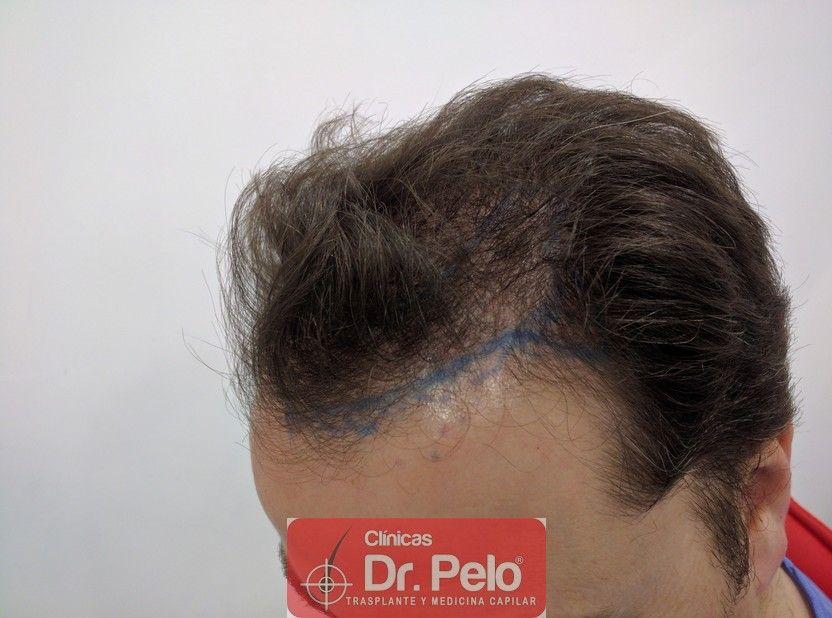 [Imagen: injerto-capilar-dr-pelo_3.jpg]