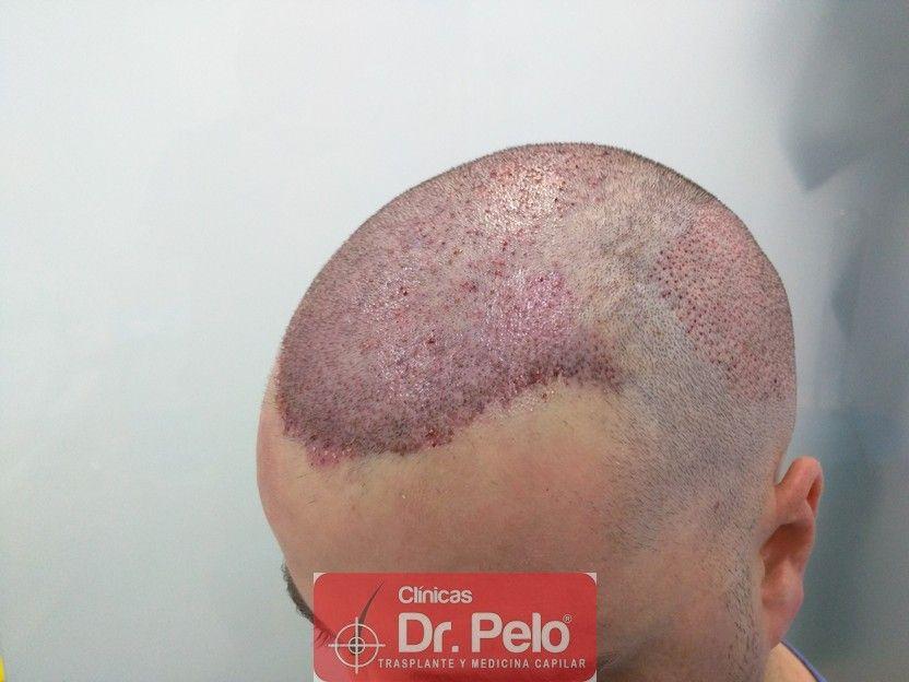 [Imagen: injerto-capilar-dr-pelo_7.jpg]