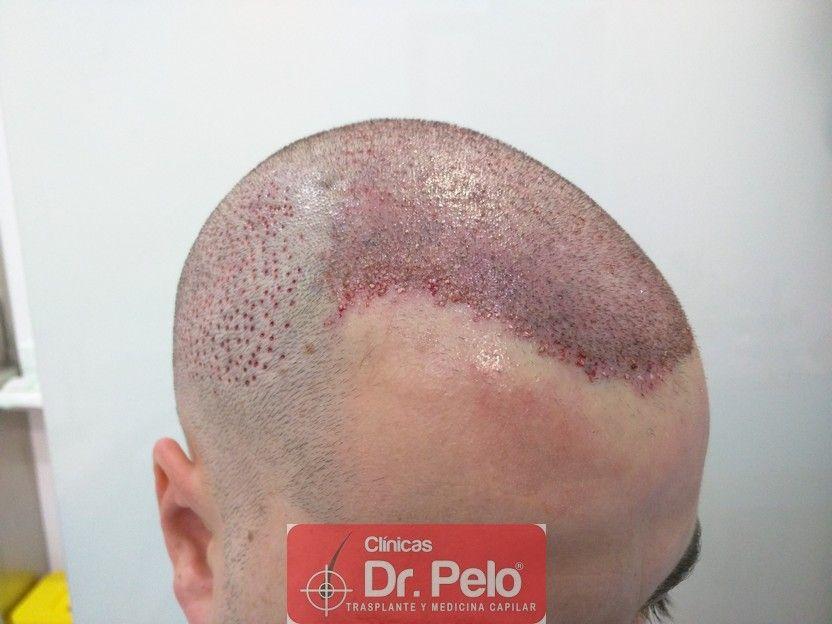 [Imagen: injerto-capilar-dr-pelo_9.jpg]