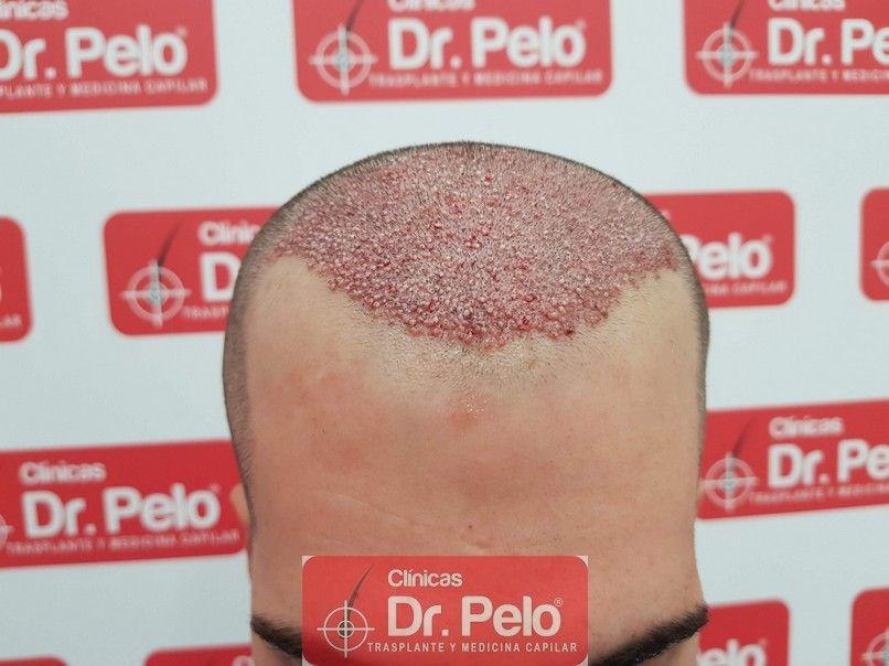 [Imagen: trasplante-capilar-dr-pelo_6.jpg]