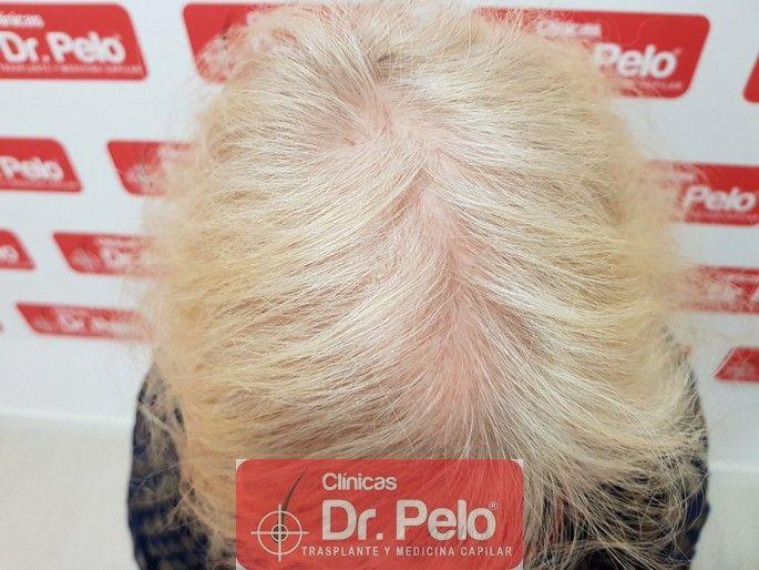 [Imagen: tratamiento-capilar-dr-pelo_10-1.jpg]