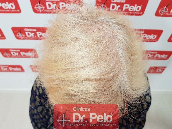 [Imagen: tratamiento-capilar-dr-pelo_12-1.jpg]