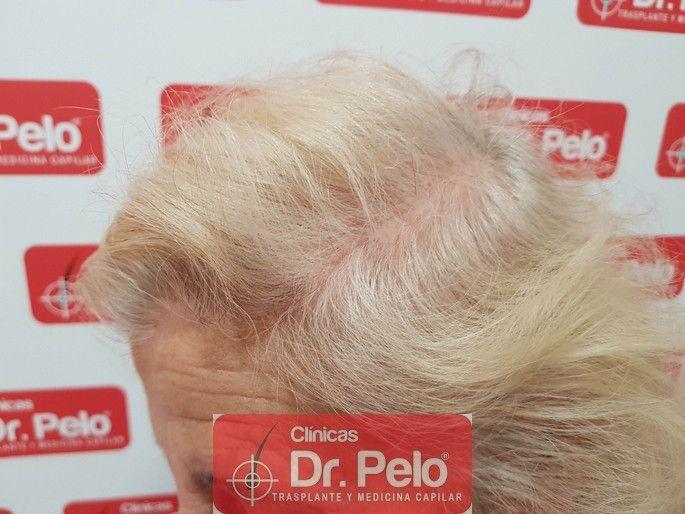[Imagen: tratamiento-capilar-dr-pelo_13-1.jpg]