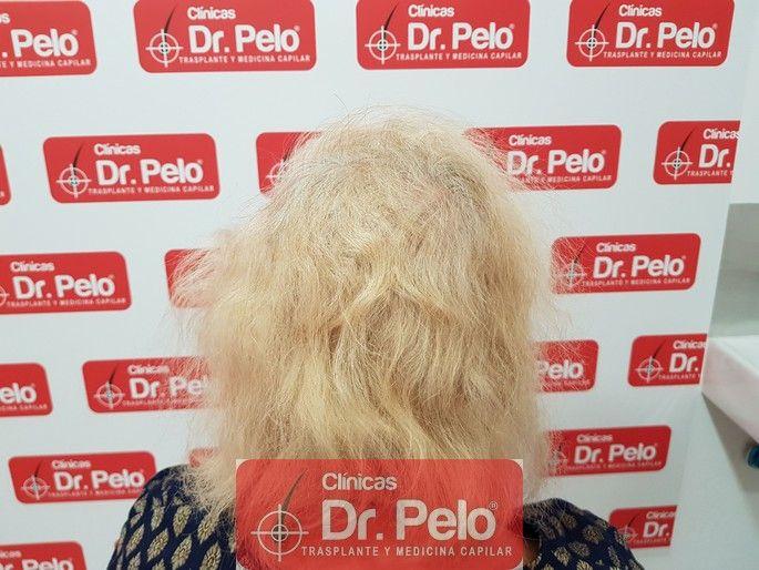 [Imagen: tratamiento-capilar-dr-pelo_14-1.jpg]