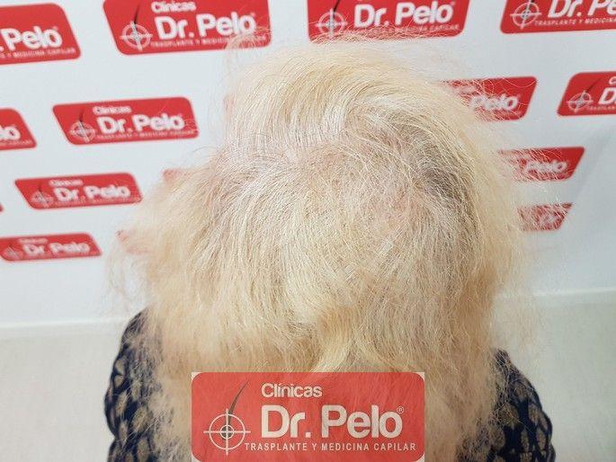 [Imagen: tratamiento-capilar-dr-pelo_15-1.jpg]