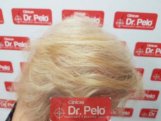 [Imagen: tratamiento-capilar-dr-pelo_18.jpg]