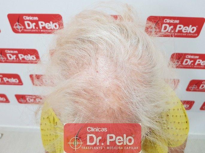 [Imagen: tratamiento-capilar-dr-pelo_2-1.jpg]