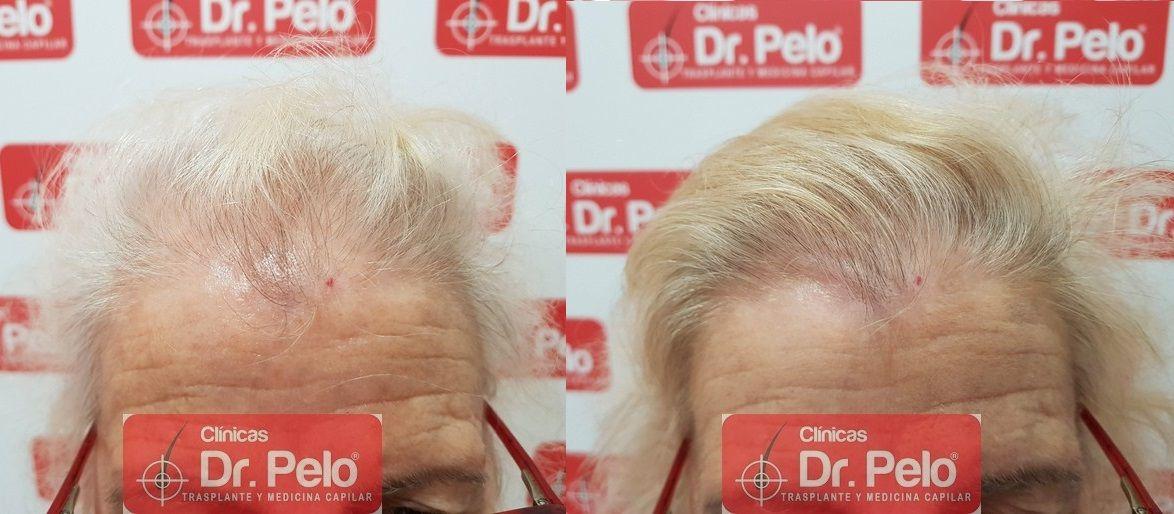 [Imagen: tratamiento-capilar-dr-pelo_20-1.jpg]