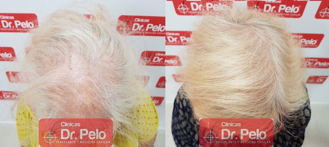 [Imagen: tratamiento-capilar-dr-pelo_21-1.jpg]