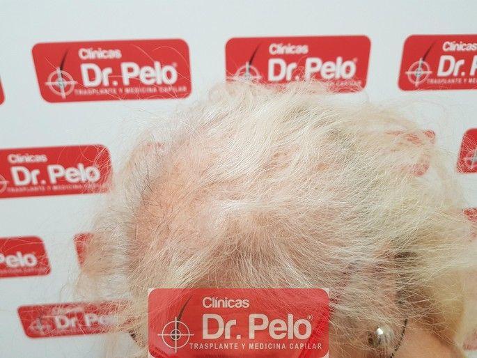 [Imagen: tratamiento-capilar-dr-pelo_3-1.jpg]