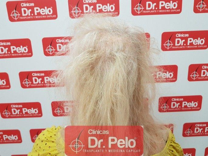 [Imagen: tratamiento-capilar-dr-pelo_4-1.jpg]