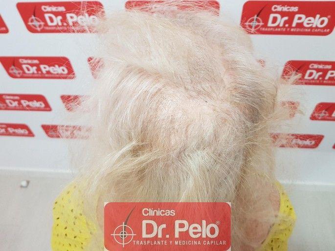 [Imagen: tratamiento-capilar-dr-pelo_5-1.jpg]