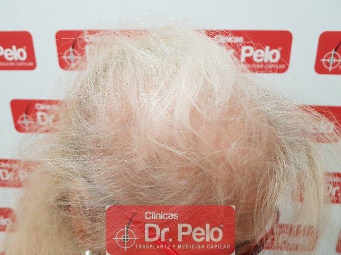 [Imagen: tratamiento-capilar-dr-pelo_7-1.jpg]