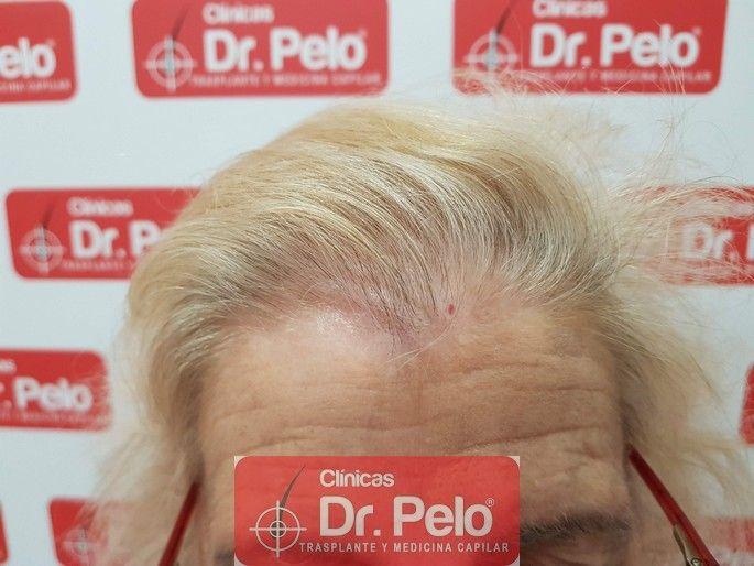 [Imagen: tratamiento-capilar-dr-pelo_8.jpg]