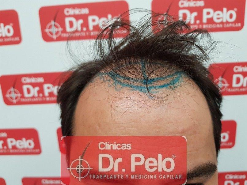 [Imagen: injerto-capilar-dr-pelo-1.jpg]
