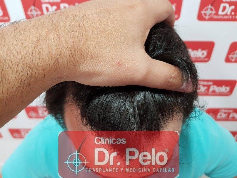 [Imagen: injerto-capilar-dr-pelo_11-1.jpg]