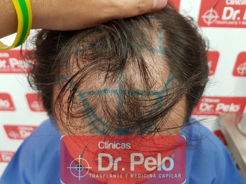 [Imagen: injerto-capilar-dr-pelo_2-1.jpg]