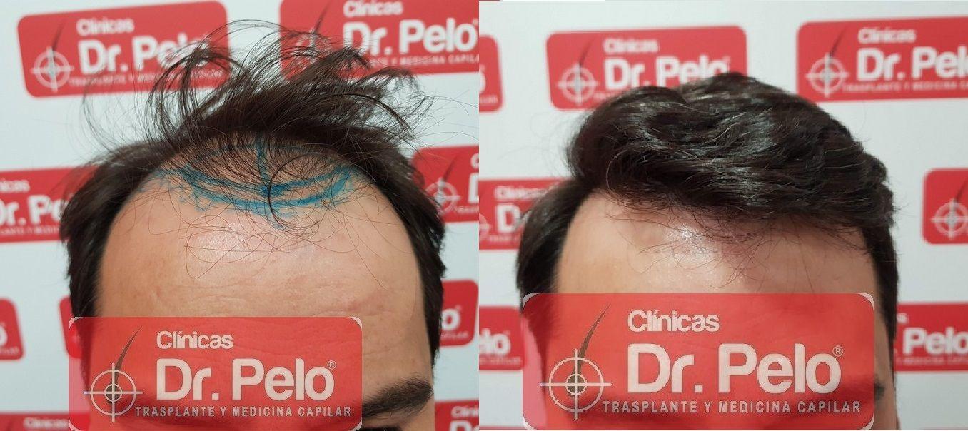 [Imagen: injerto-capilar-dr-pelo_20-1.jpg]