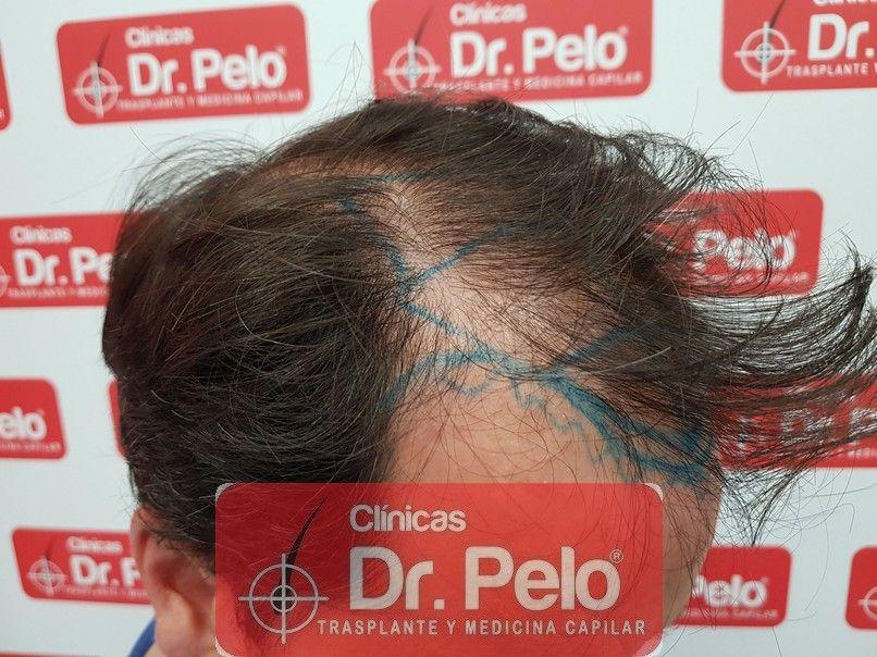 [Imagen: injerto-capilar-dr-pelo_6-1.jpg]