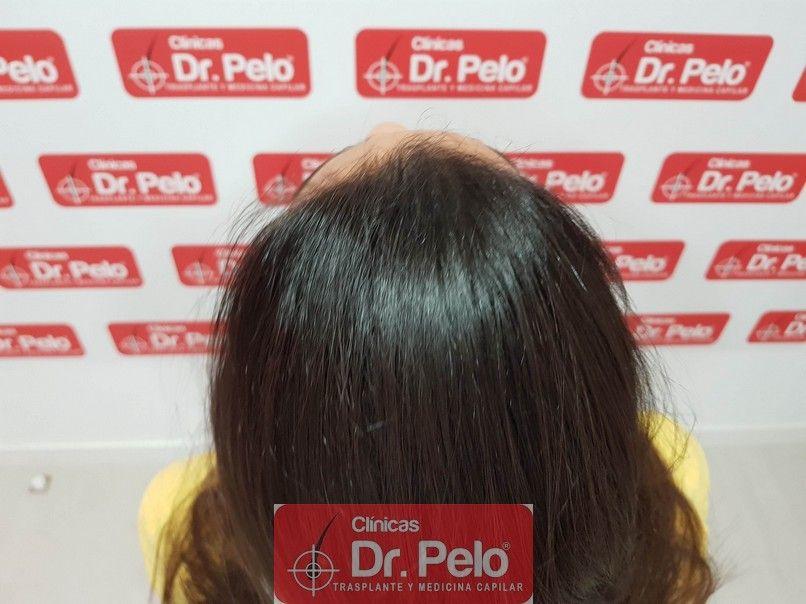 [Imagen: tratamiento-capilar-dr-pelo_11.jpg]