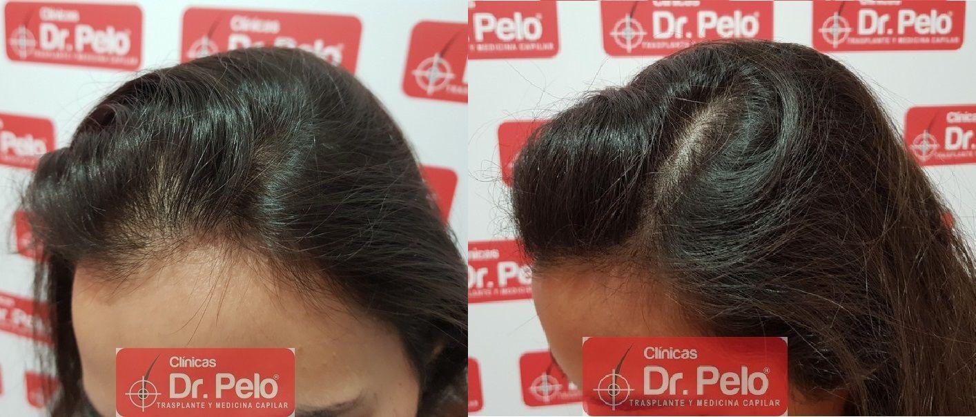 [Imagen: tratamiento-capilar-dr-pelo_22.jpg]
