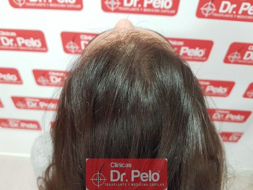 [Imagen: tratamiento-capilar-dr-pelo_6.jpg]