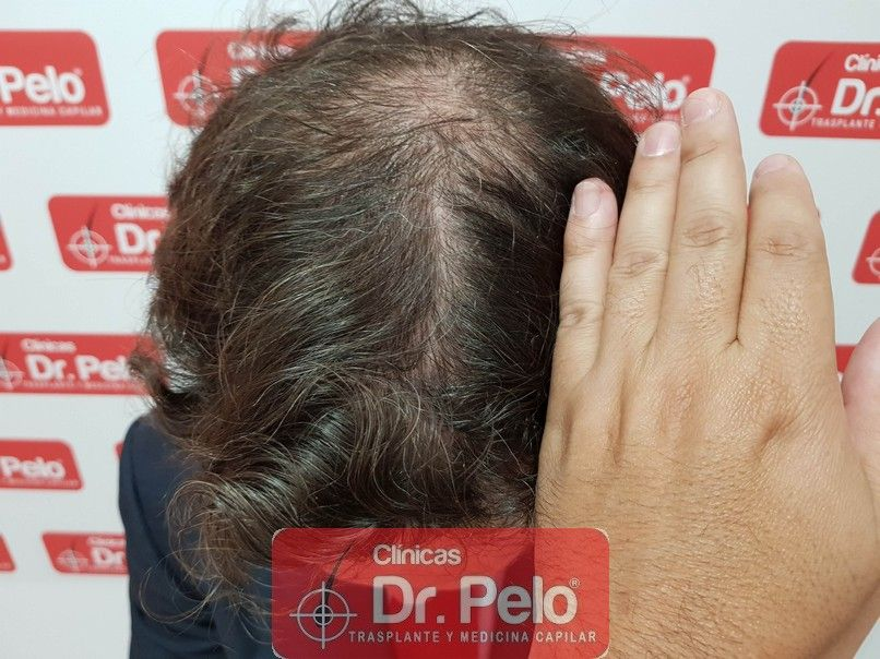 [Imagen: injerto-capilar-dr-pelo_11.jpg]