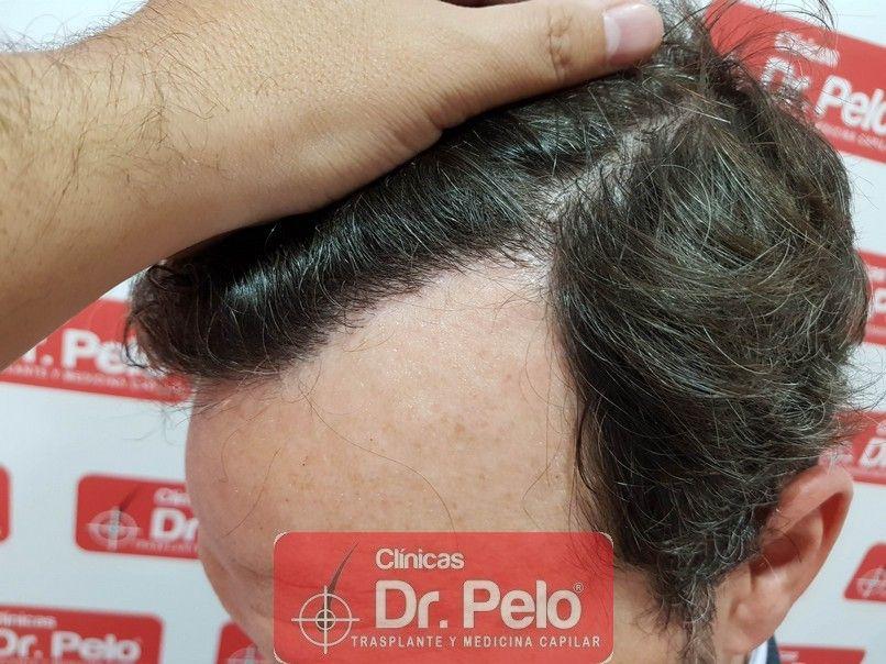 [Imagen: injerto-capilar-dr-pelo_13.jpg]