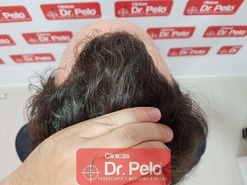 [Imagen: injerto-capilar-dr-pelo_14.jpg]