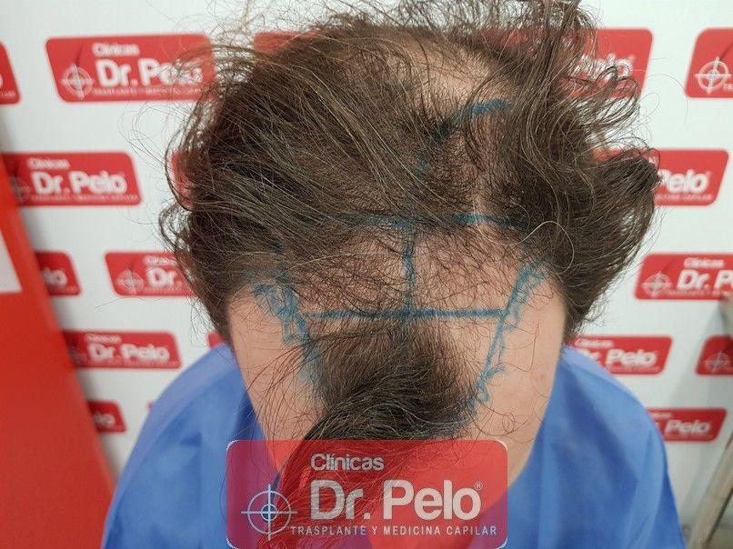 [Imagen: injerto-capilar-dr-pelo_2.jpg]