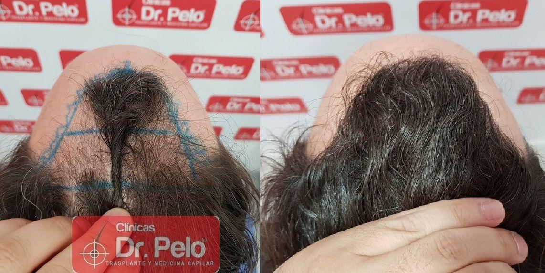 [Imagen: injerto-capilar-dr-pelo_22.jpg]