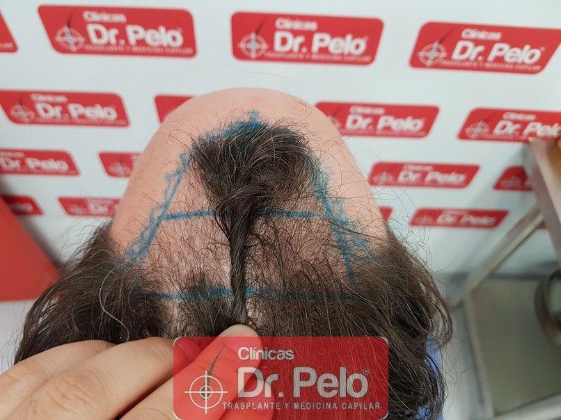 [Imagen: injerto-capilar-dr-pelo_4.jpg]