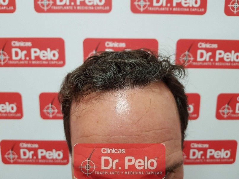 [Imagen: injerto-capilar-dr-pelo_8.jpg]