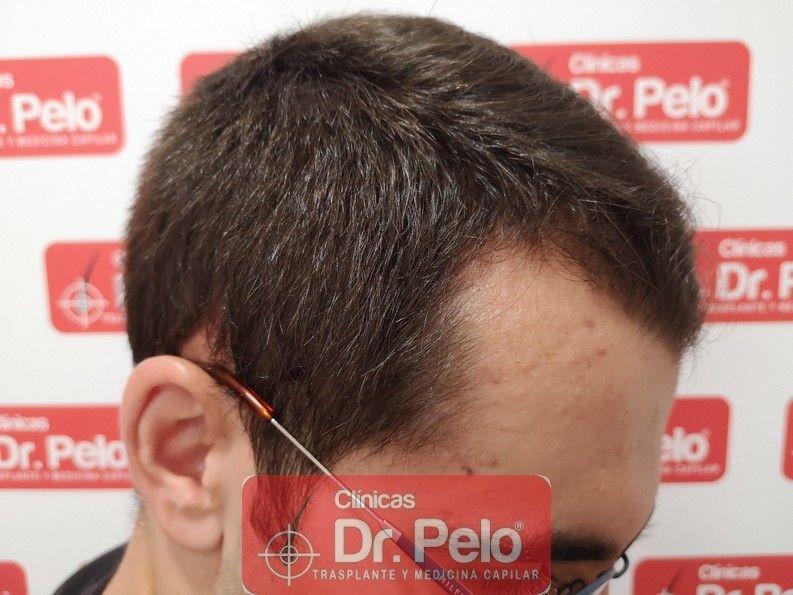 [Imagen: tratamiento-capilar-dr-pelo_12.jpg]