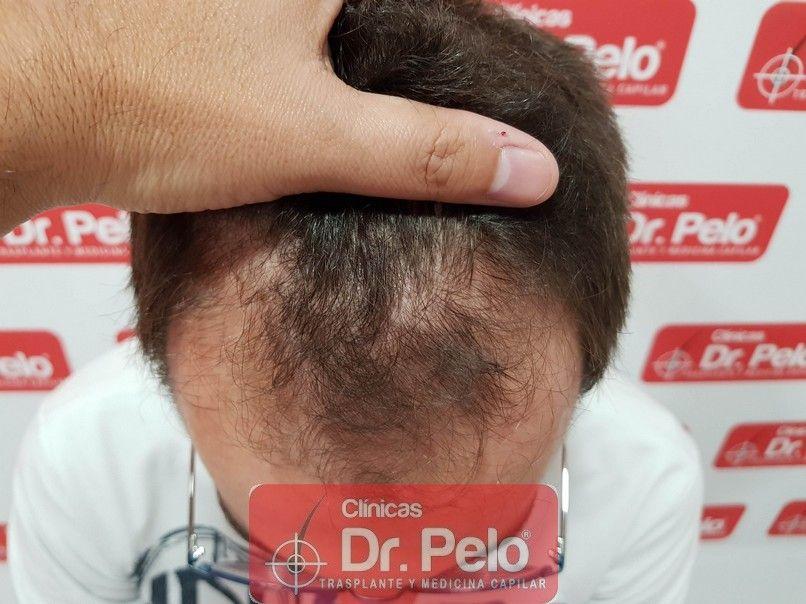 [Imagen: tratamiento-capilar-dr-pelo_2.jpg]