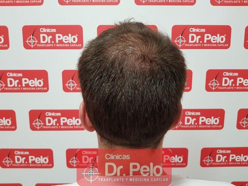[Imagen: tratamiento-capilar-dr-pelo_4.jpg]