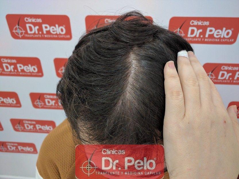 [Imagen: tratamiento-capilar-dr-pelo_10.jpg]