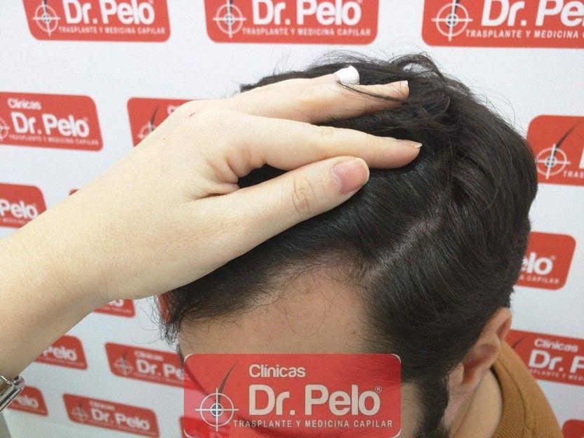 [Imagen: tratamiento-capilar-dr-pelo_13.jpg]