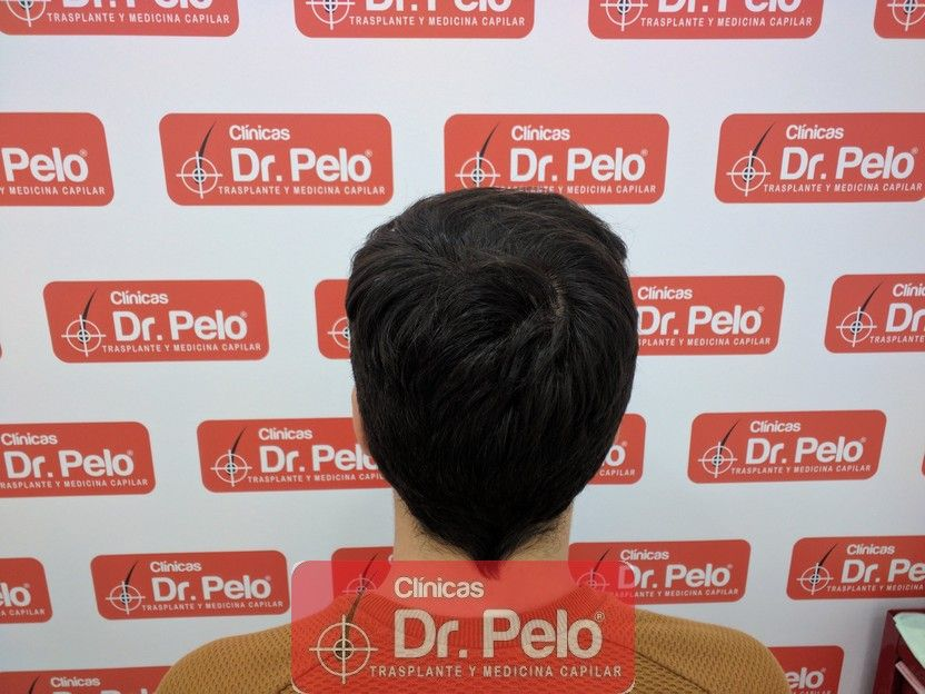 [Imagen: tratamiento-capilar-dr-pelo_14.jpg]
