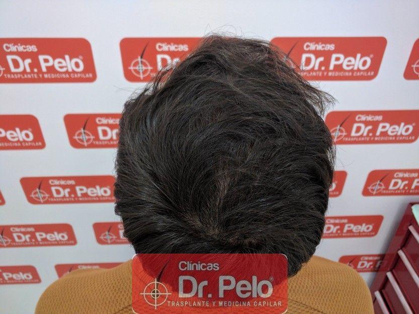 [Imagen: tratamiento-capilar-dr-pelo_16.jpg]